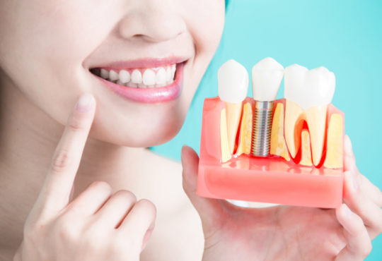Dental Implants How Much Do They Cost